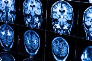 Диагностика шизотипического расстройства