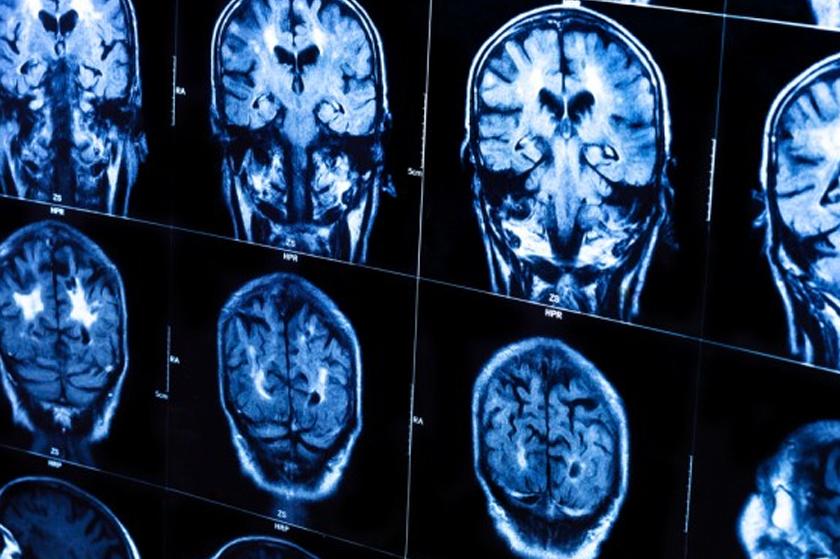 Диагностика шизофрении и лечение в Московской клинике